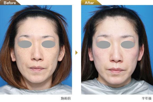 トラネキサム酸 シミ 効果 electronicdissertation.web.fc2.com